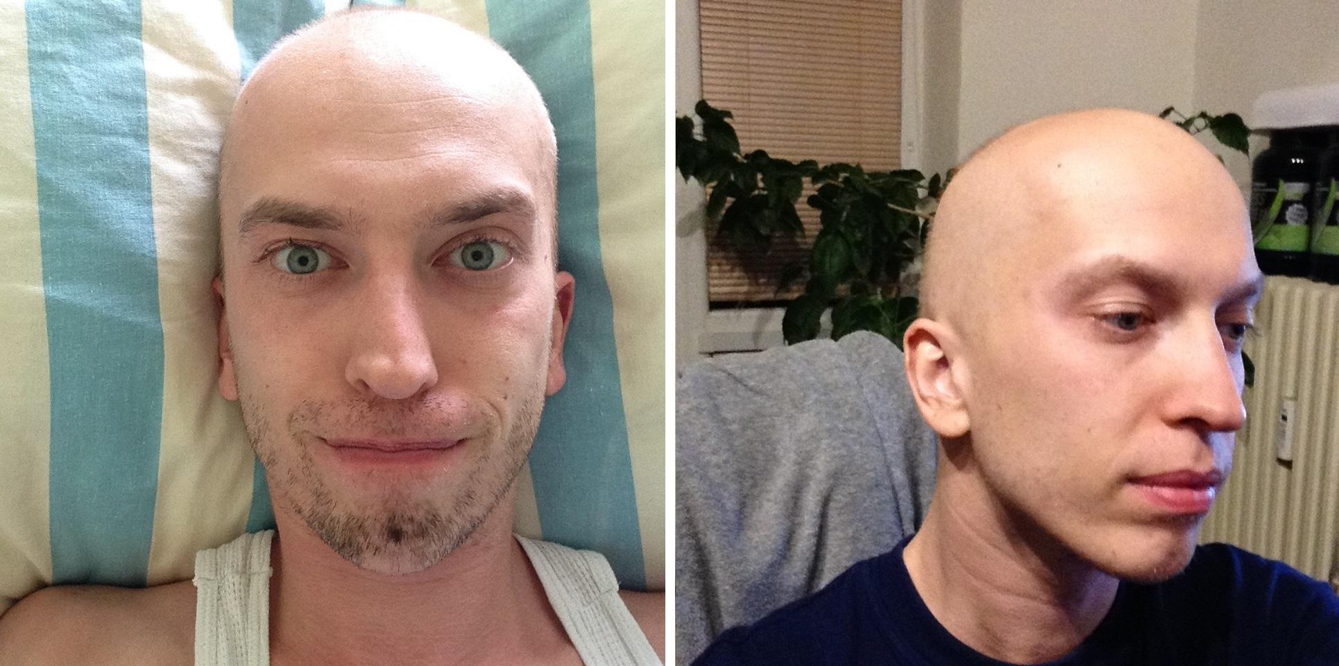 """fotografie z liečby, prvá z 8. februára (koniec 2. cyklu), druhá z 20. marca, teda už po ukončení chemoterapie a jej """"plnom"""" efekte"""