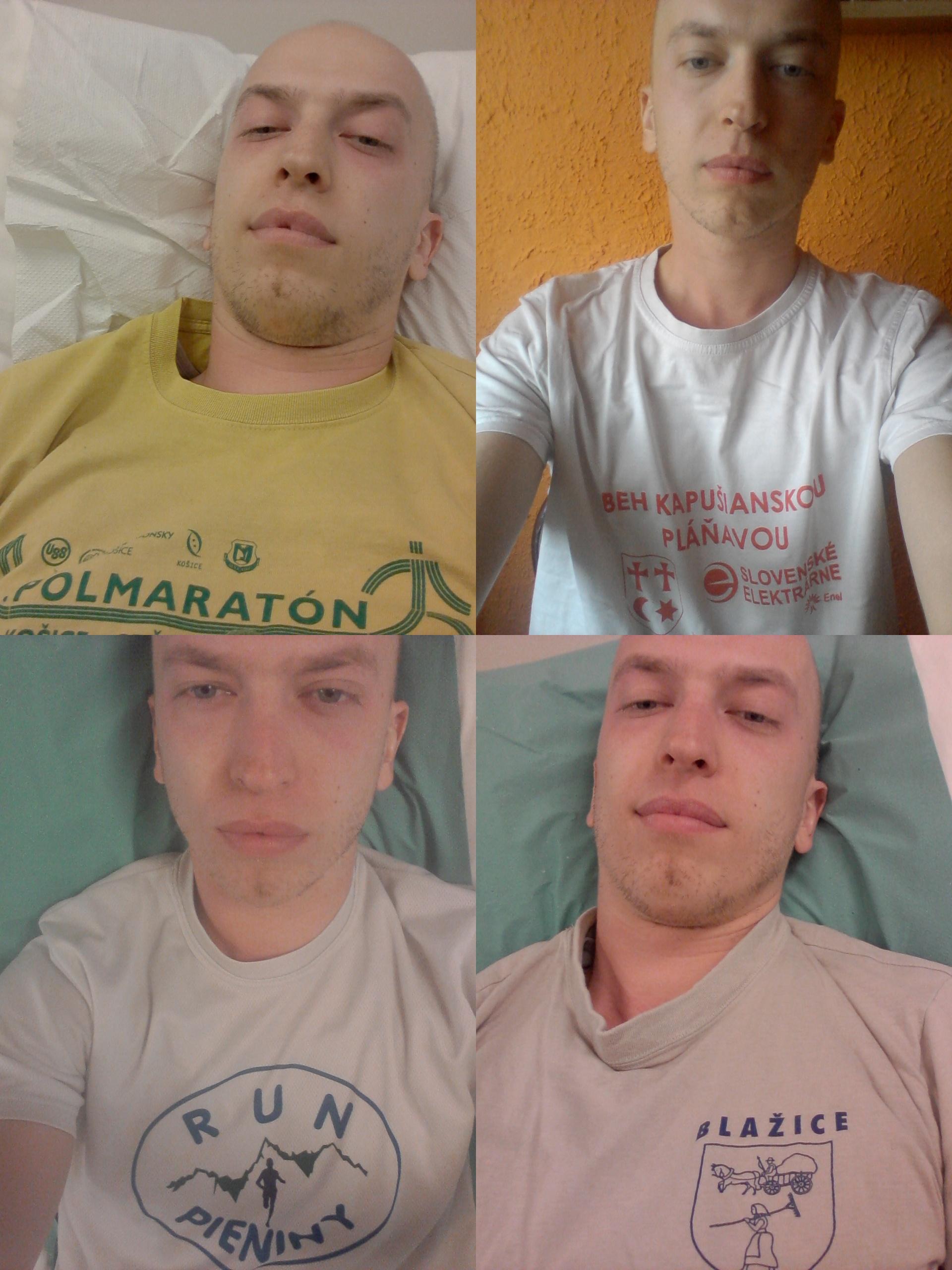 rôzne bežecké tričká, ktoré som si obliekal na liečbu