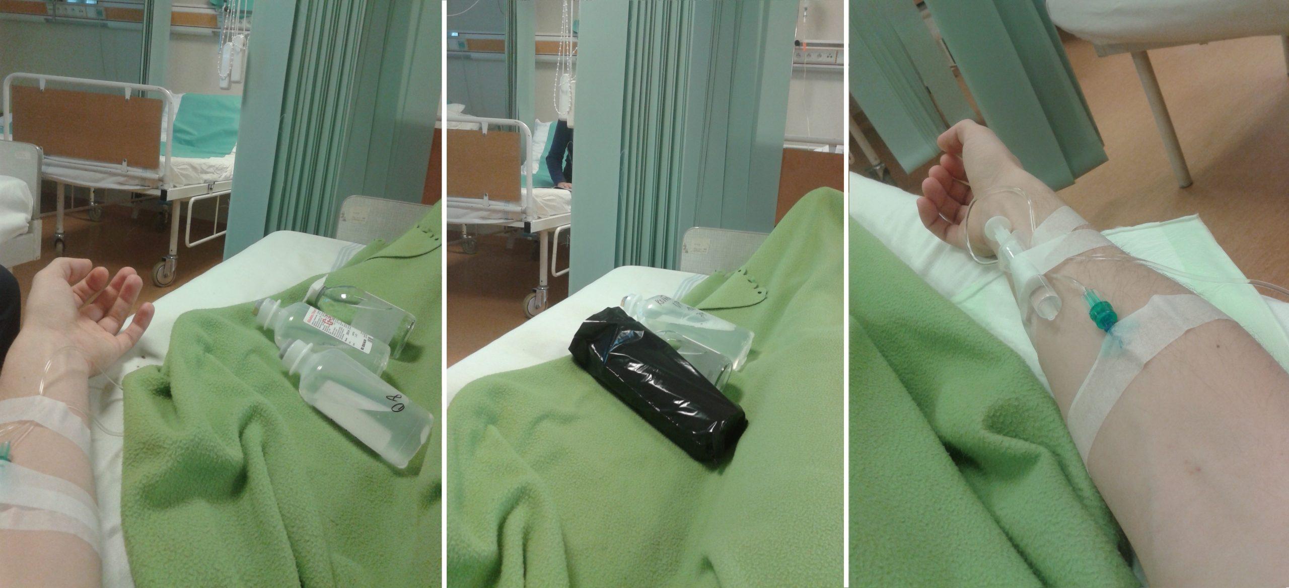 ruky sa počas liečby striedali, rôzne druhy podávaných infúzií vľavo a v strede